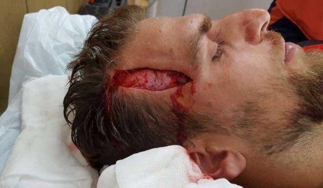 Internado. El jugador tuvo que ser atendido por el tremendo corte en la cabeza.