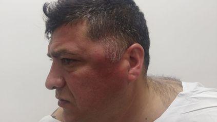 Secuela de la barbarie. Arnaldo Quiroga recibió una patada en la cabeza y terminó hospitalizado.