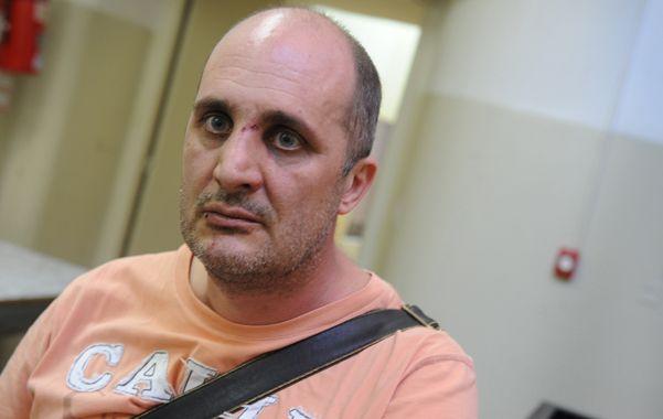 El denunciante. Omar Calzia fue atacado por tres personas el martes pasado. Vincula la golpiza con su denuncia.