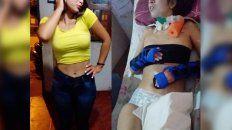 Ayelén Luna. La joven santafesina necesita viajar con urgencia a China para realizarse un tratamiento con células madres producto de una parálisis cerebral.