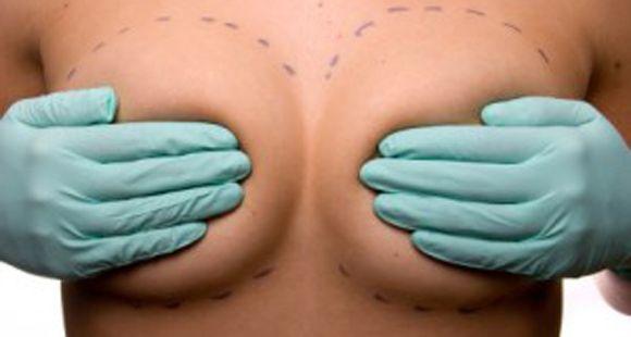 ¿Cada cuánto hay que cambiarse los implantes de silicona?