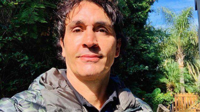Sebastián Estevanez sufrió quemaduras por un accidente doméstico