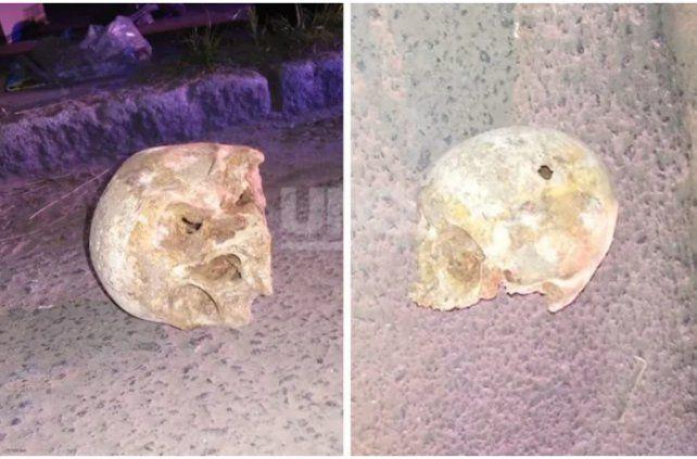 Encontraron un cráneo humano con una perforación tirado en la calle en Santa Fe