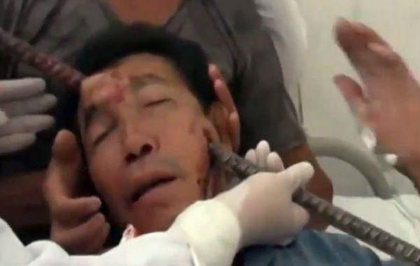 Una barra de metal le atravesó la cabeza y sobrevivió