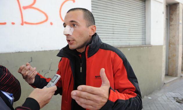 Erico Neironi denunció la agresión que sufrió el sábado a la noche cuando lo confundieron con un delincuente. (Foto: S. Meccia)