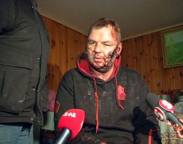 terror. Un líder opositor fue secuestrado y reapareció torturado.