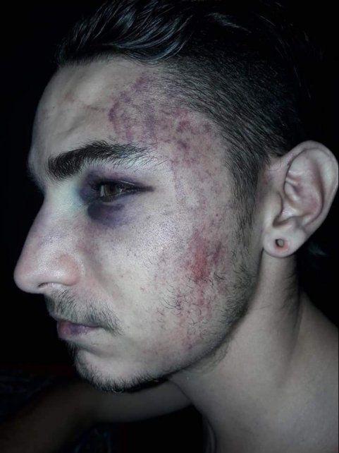 Una de las víctimas terminó con varios golpes en la cara y el cuerpo
