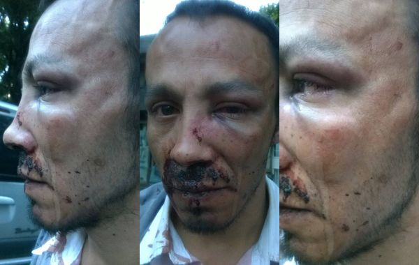 Bordón comentó que la emergencia que acudió a la comisaría sólo el recomendó lavarse la cara. Las heridas se las curaron en el Hospital Alberdi.
