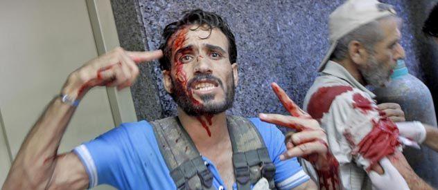 Civiles y guerrilleros heridos en Aleppo por la artillería.