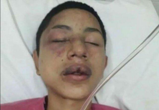 La víctima. Julián debió ser internado en el hospital Anselmo Gamen con lesiones de distinta consideración.