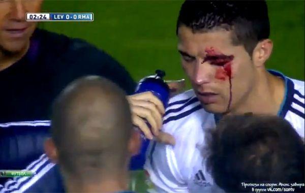 El codazo que recibió Cristiano Ronaldo da la vuelta al mundo