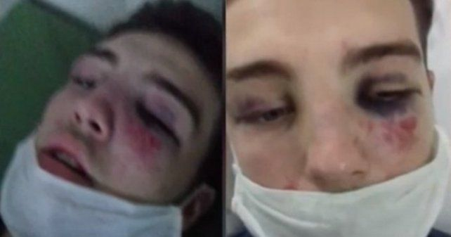 Adriel, que está internado por los golpes, sufrió varias patadas en la cabeza de parte de un joven que le robó el celular.