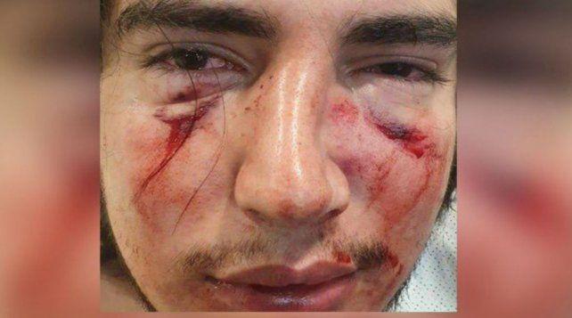Atacado. El joven sufrió fractura de tabique y de órbita ocular
