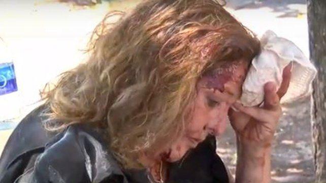 Sandra se toma la cabeza con una toalla para detener la sangre. La atacaron a culatazos para robarle la moto.