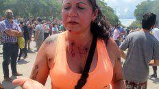 A LOS TIROS. Una mujer muestra las marcas que las balas de goma policiales dejaron sobre su cuerpo.
