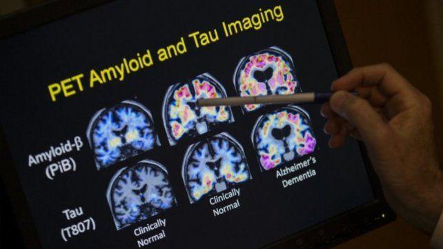 Estados Unidos aprueba una nueva terapia contra el Alzheimer.